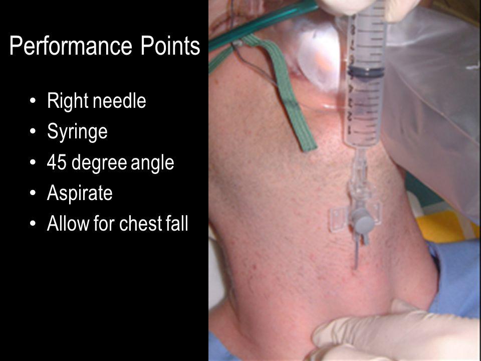 Performance Points Right needle Syringe 45 degree angle Aspirate