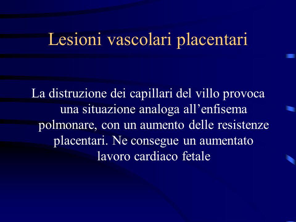 Lesioni vascolari placentari