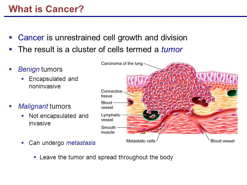 What is Cancer Cancer is unrestrained cell growth and division