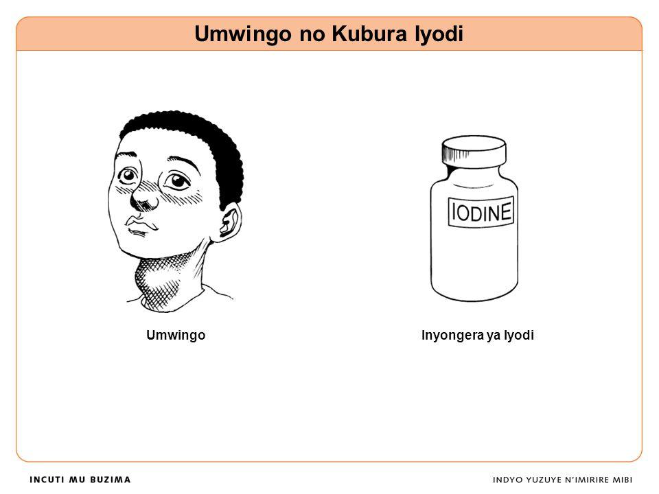 Umwingo no Kubura Iyodi