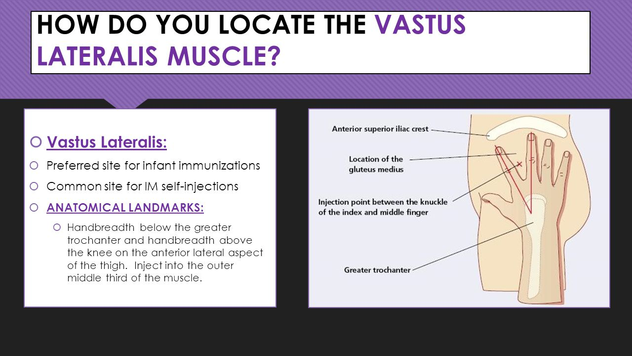 HOW DO YOU LOCATE THE VASTUS LATERALIS MUSCLE