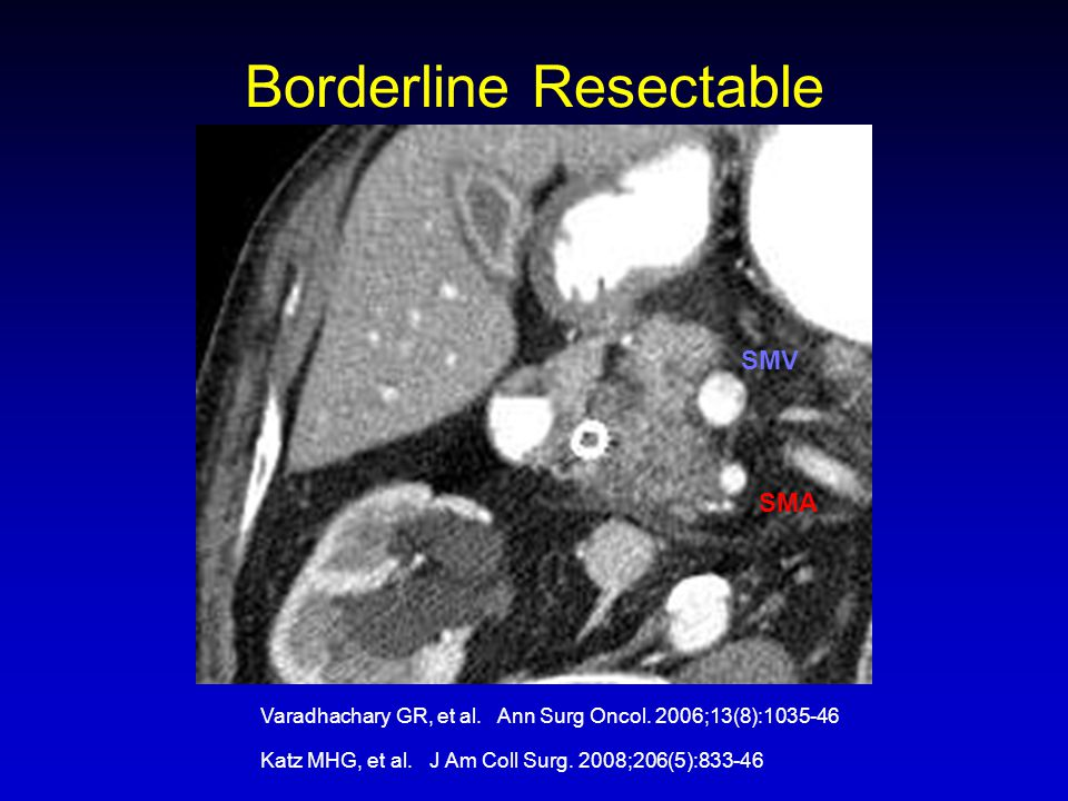 Borderline Resectable