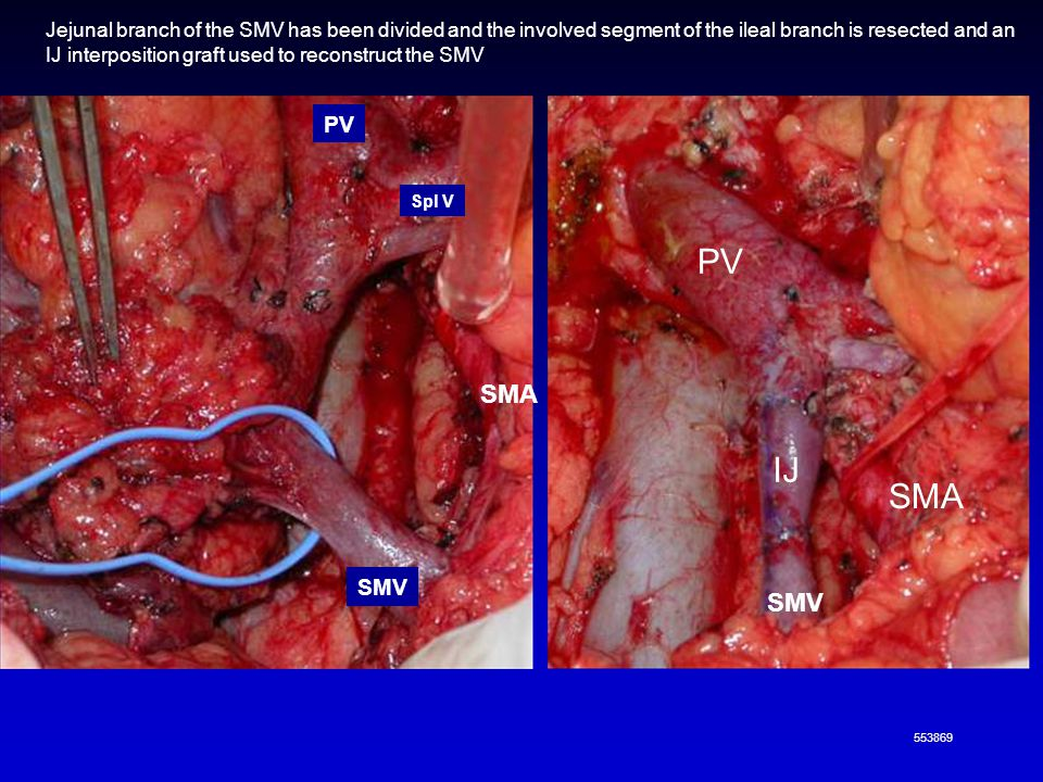 Jejunal branch of the SMV has been divided and the involved segment of the ileal branch is resected and an IJ interposition graft used to reconstruct the SMV