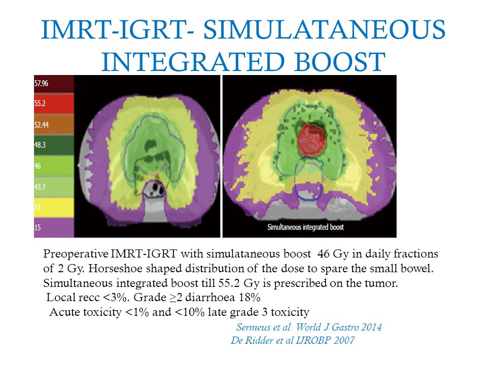 IMRT-IGRT- SIMULATANEOUS INTEGRATED BOOST