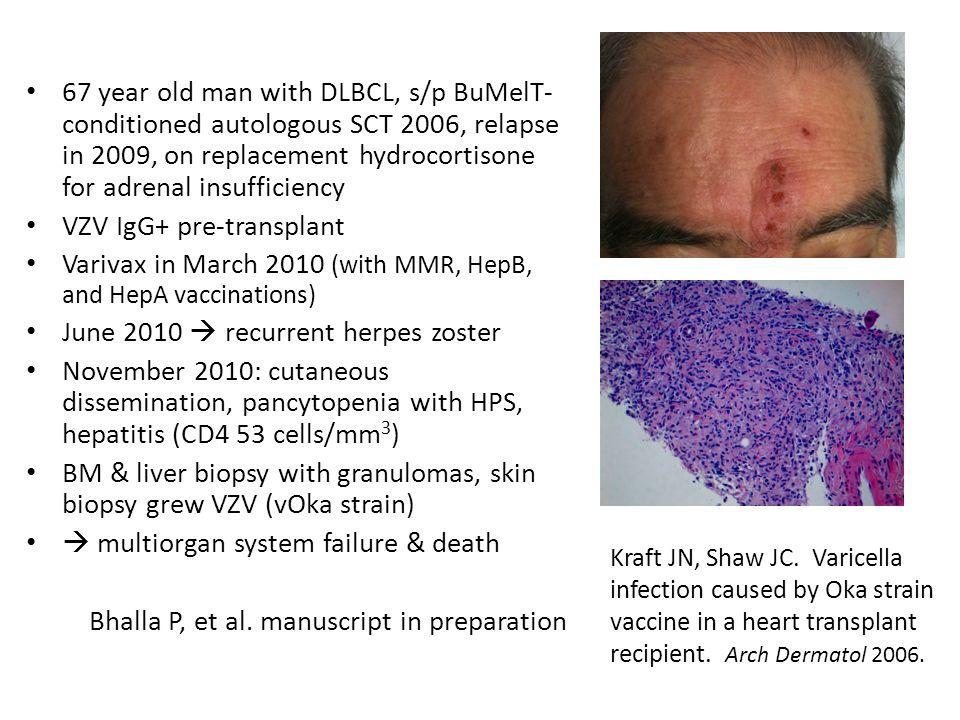 VZV IgG+ pre-transplant