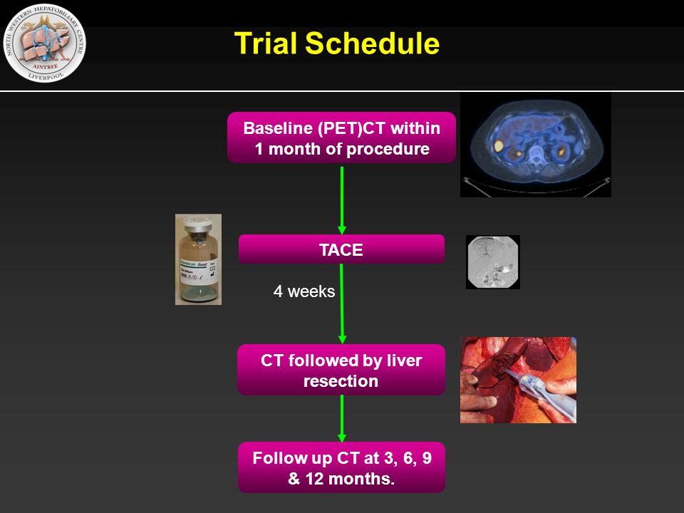 Trial Schedule Baseline (PET)CT within 1 month of procedure TACE