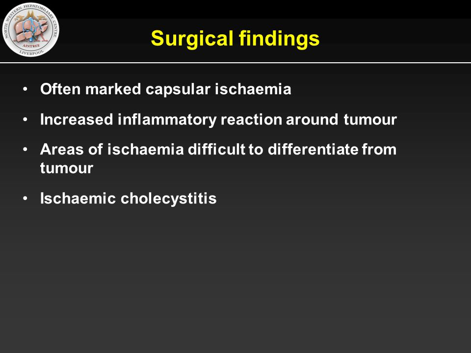 Surgical findings Often marked capsular ischaemia