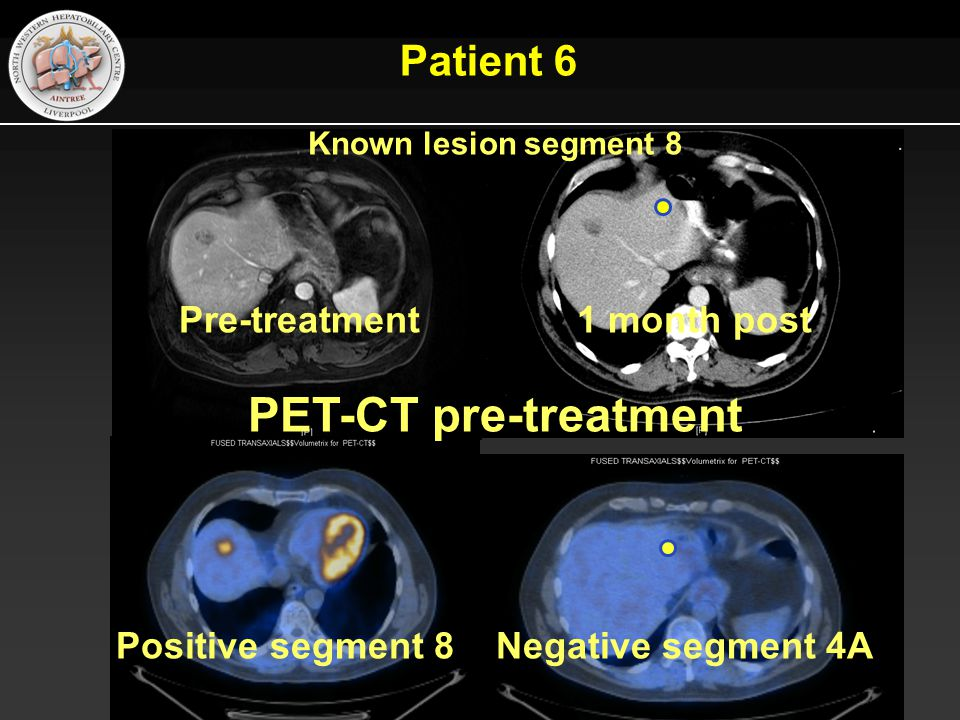 Pre-treatment 1 month post Positive segment 8 Negative segment 4A