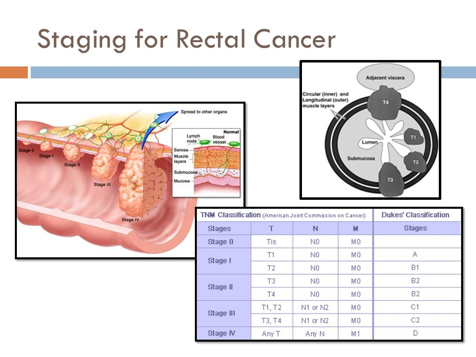 Staging for Rectal Cancer