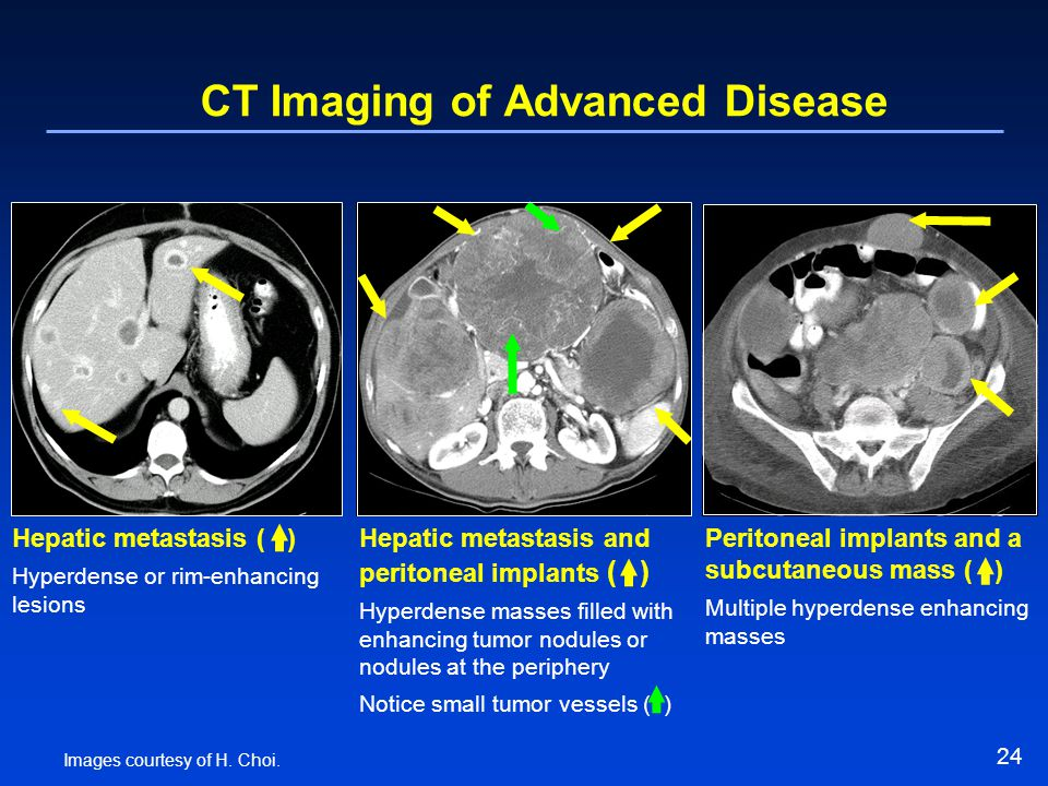 CT Imaging of Advanced Disease