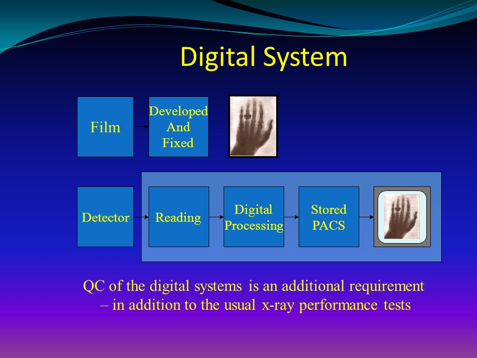 Digital System Film. Developed. And. Fixed. Detector. Reading. Digital. Processing. Stored.