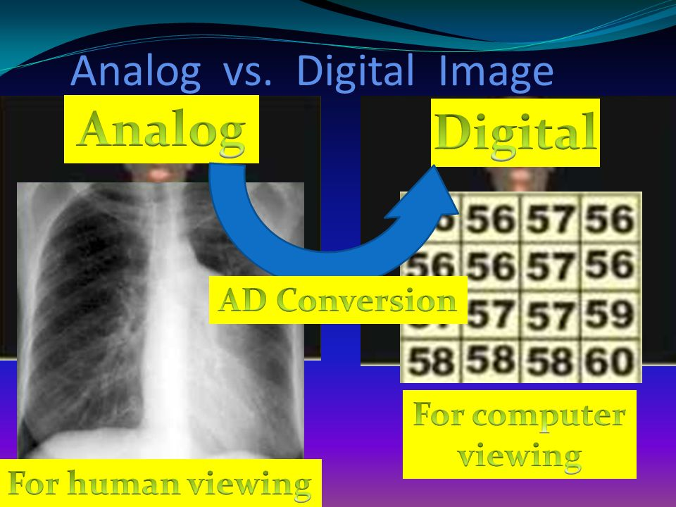 Analog vs. Digital Image