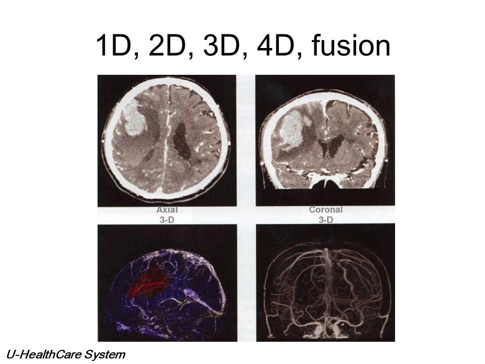 1D, 2D, 3D, 4D, fusion
