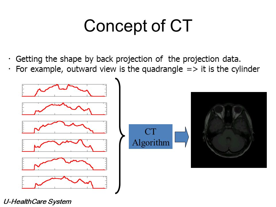 Concept of CT CT Algorithm