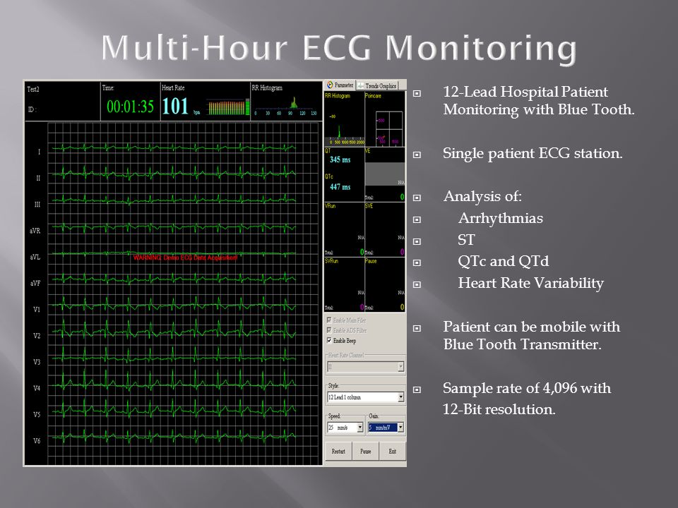 Multi-Hour ECG Monitoring