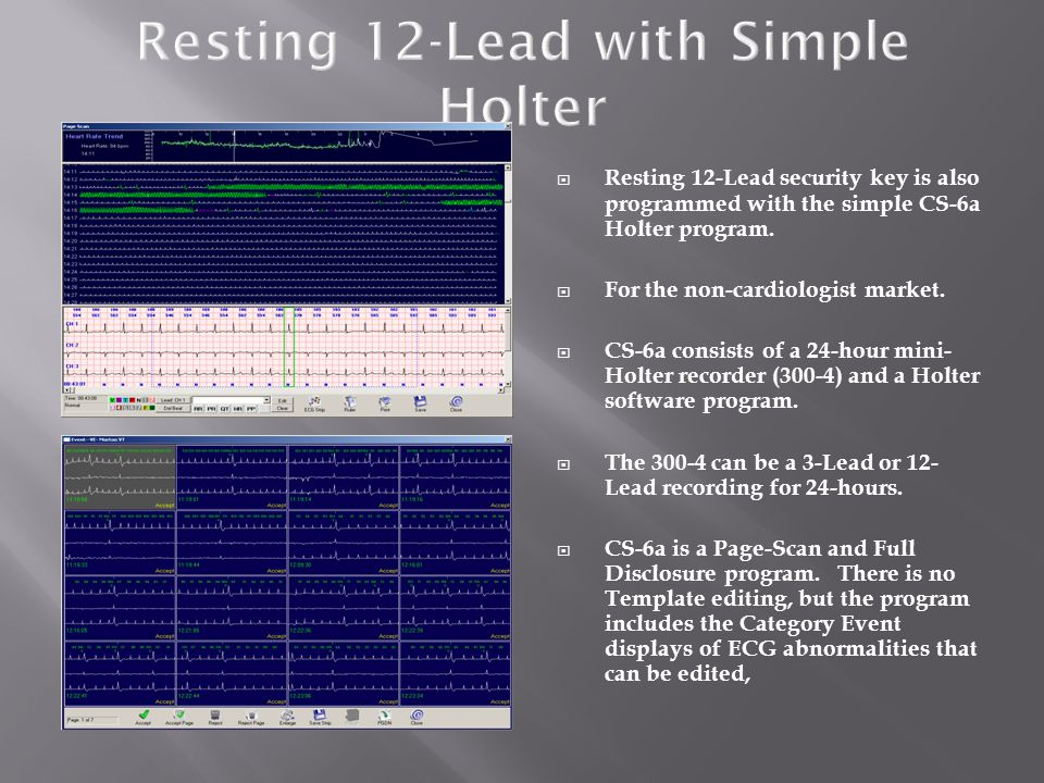 Resting 12-Lead with Simple Holter