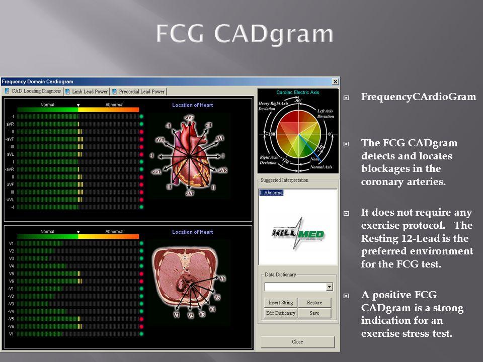 FCG CADgram FrequencyCArdioGram