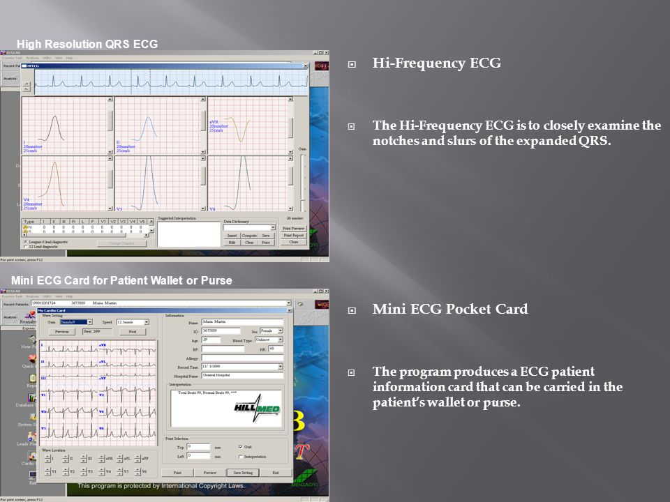 Hi-Frequency ECG Mini ECG Pocket Card