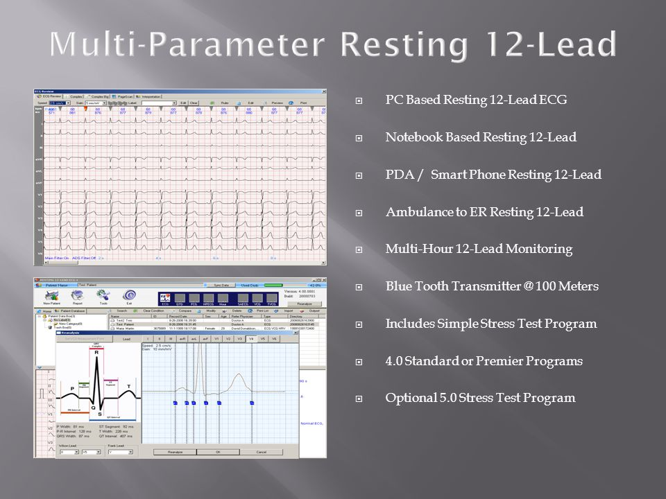 Multi-Parameter Resting 12-Lead