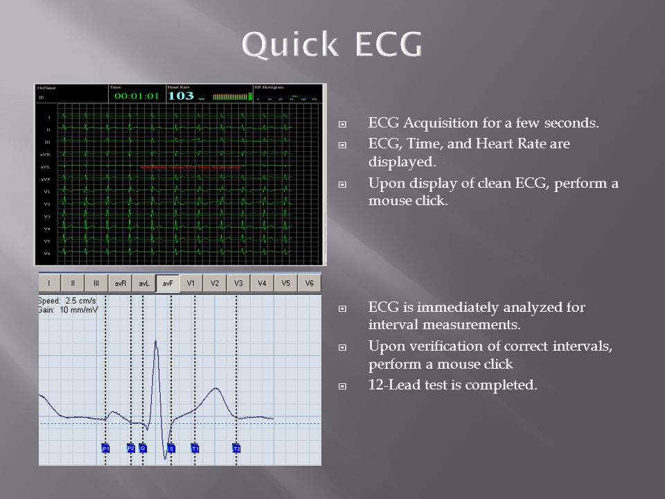 Quick ECG ECG Acquisition for a few seconds.