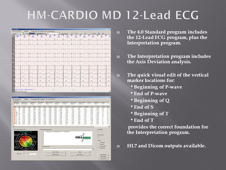 HM-CARDIO MD 12-Lead ECG The 4.0 Standard program includes the 12-Lead ECG program, plus the Interpretation program.