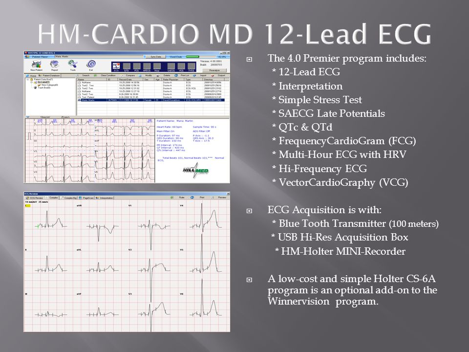 HM-CARDIO MD 12-Lead ECG The 4.0 Premier program includes: