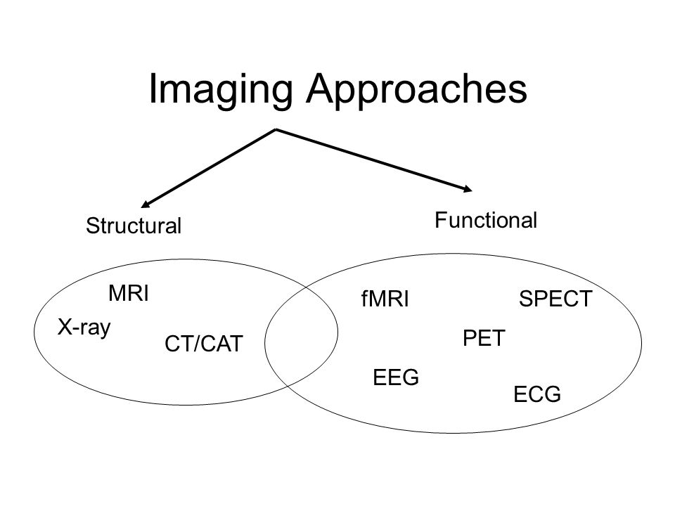 Imaging Approaches Functional Structural MRI fMRI SPECT X-ray PET