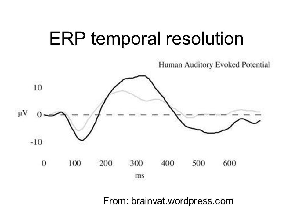 ERP temporal resolution