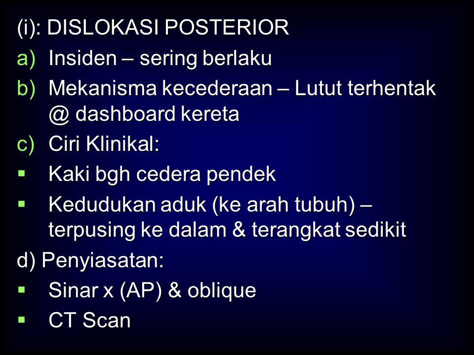 (i): DISLOKASI POSTERIOR