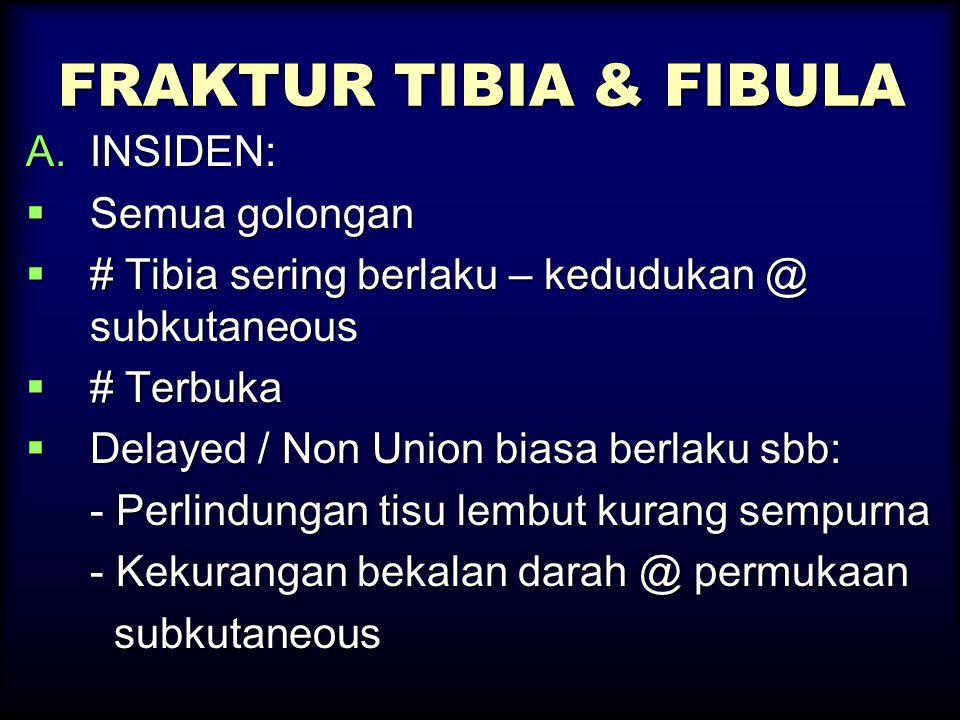 FRAKTUR TIBIA & FIBULA INSIDEN: Semua golongan