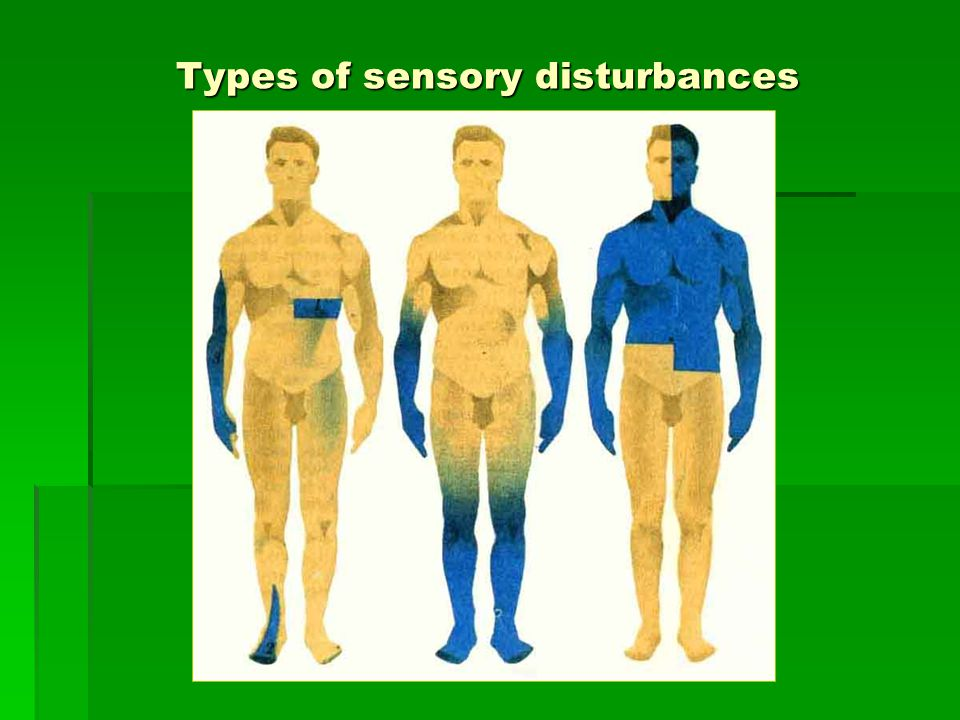 Types of sensory disturbances