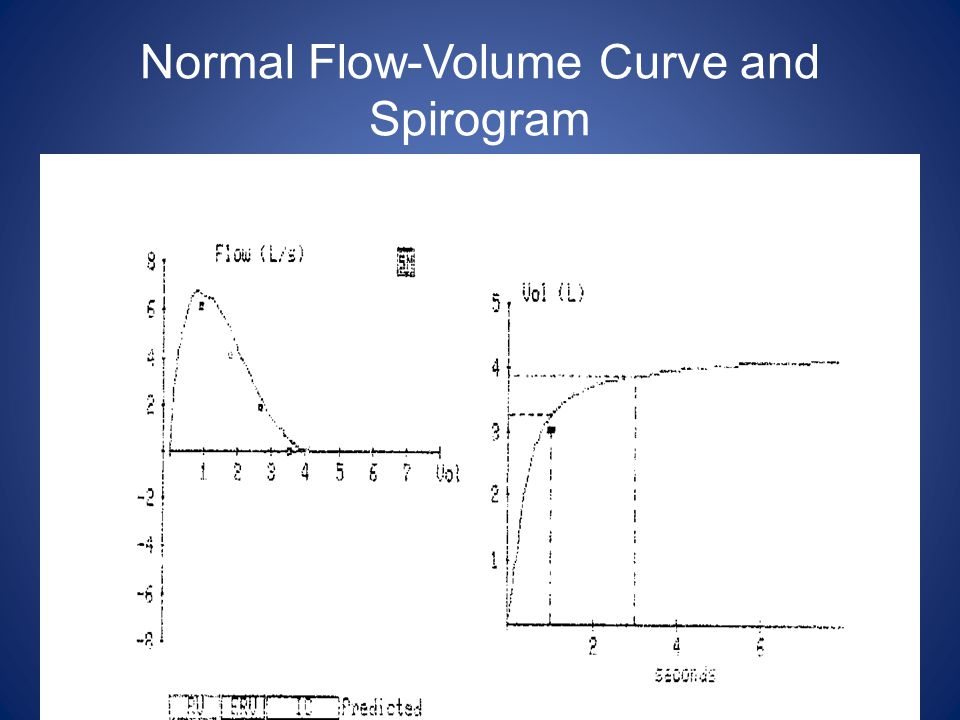 Normal Flow-Volume Curve and Spirogram