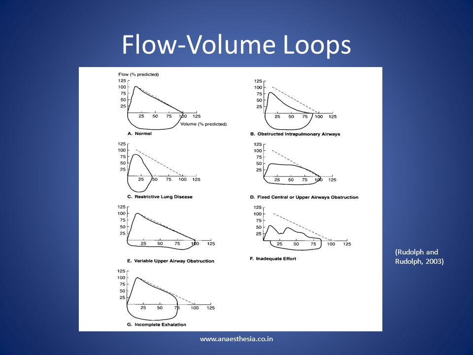 Flow-Volume Loops (Rudolph and Rudolph, 2003) www.anaesthesia.co.in