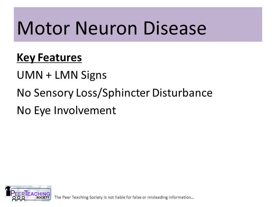 Motor Neuron Disease Key Features UMN + LMN Signs No Sensory Loss/Sphincter Disturbance No Eye Involvement
