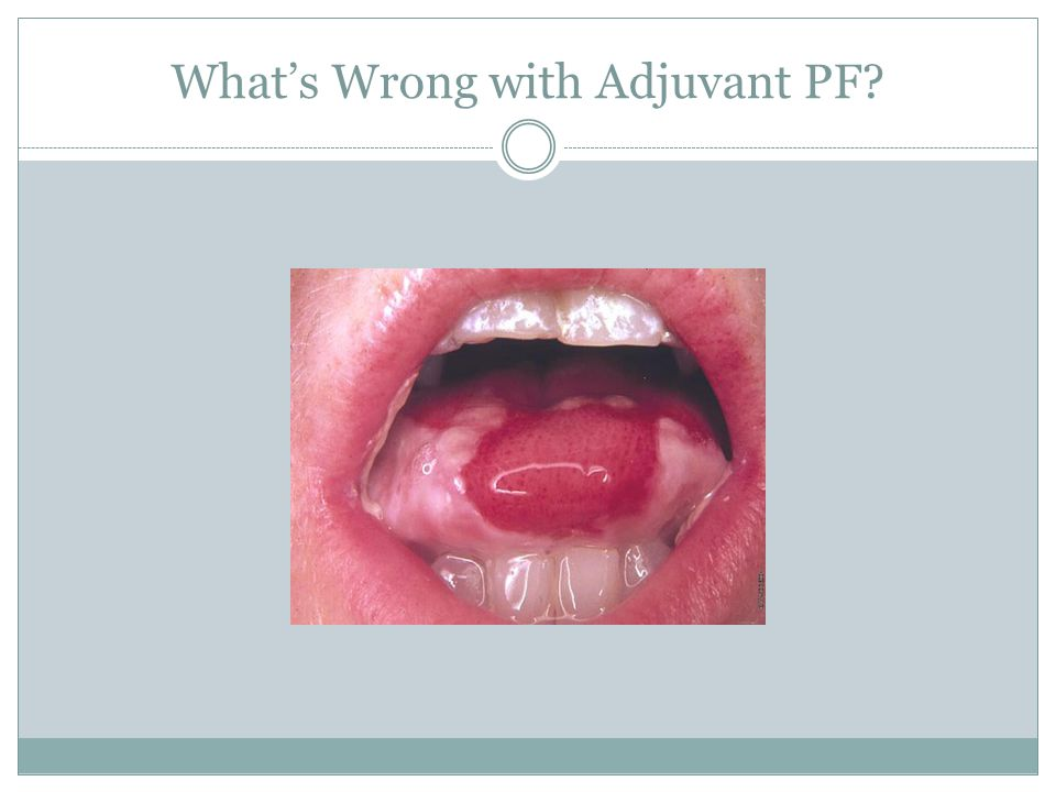 What's Wrong with Adjuvant PF