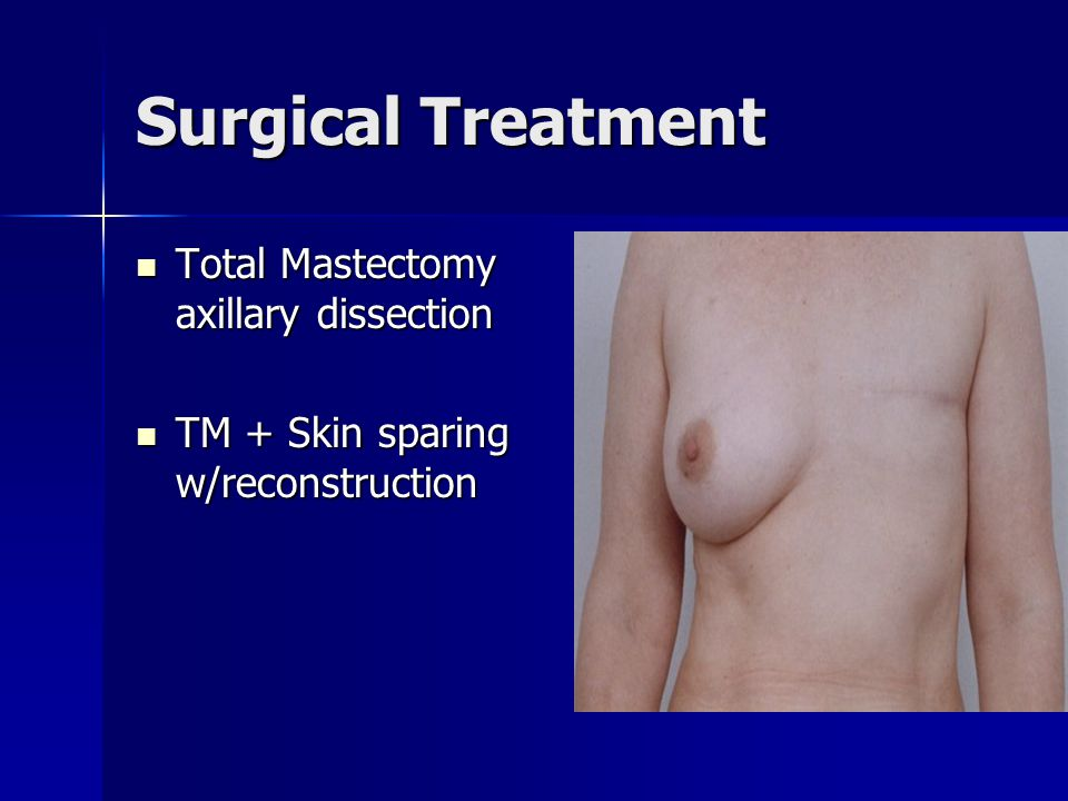 Surgical Treatment Total Mastectomy axillary dissection