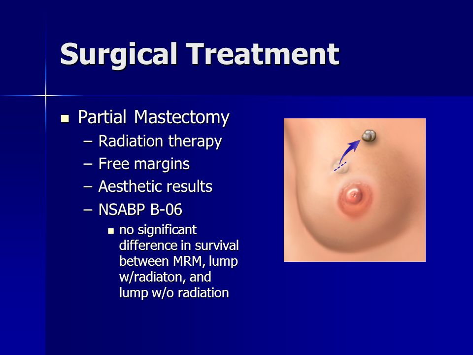Surgical Treatment Partial Mastectomy Radiation therapy Free margins