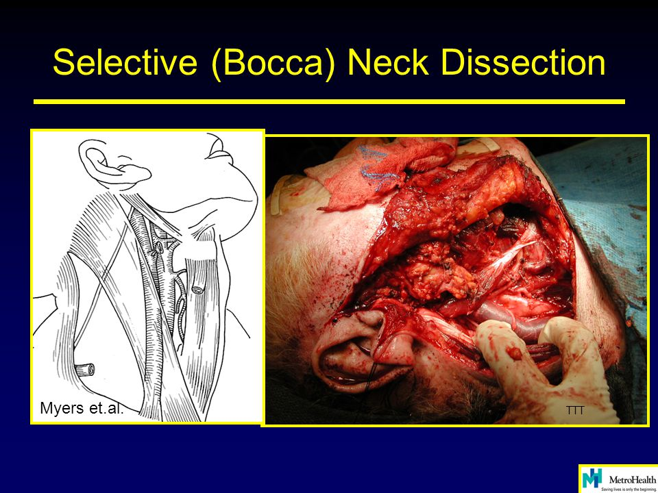 Selective (Bocca) Neck Dissection