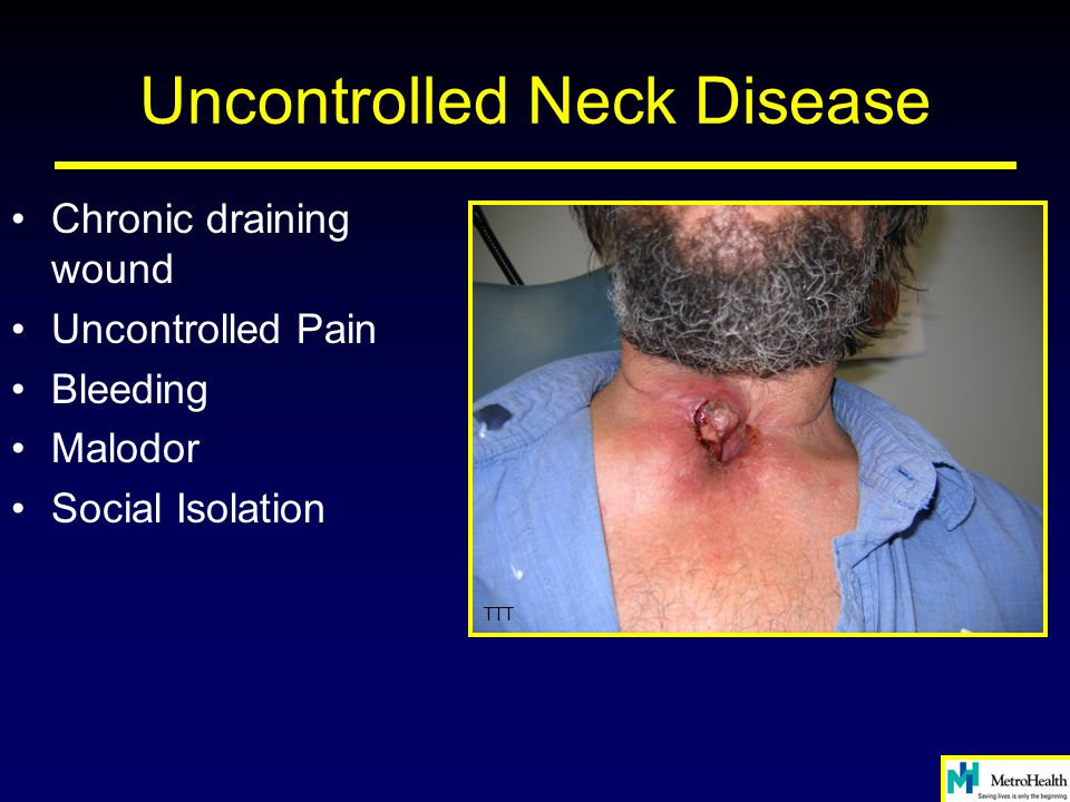 Uncontrolled Neck Disease