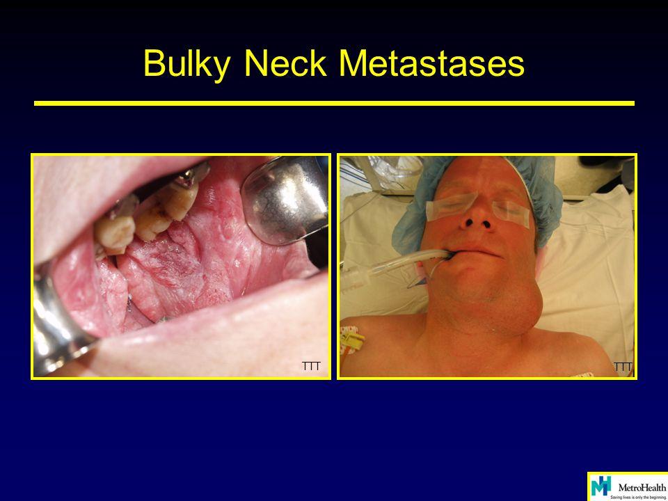 Bulky Neck Metastases TTT TTT