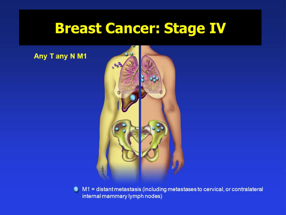 Stage 4 - National Breast Cancer Foundation