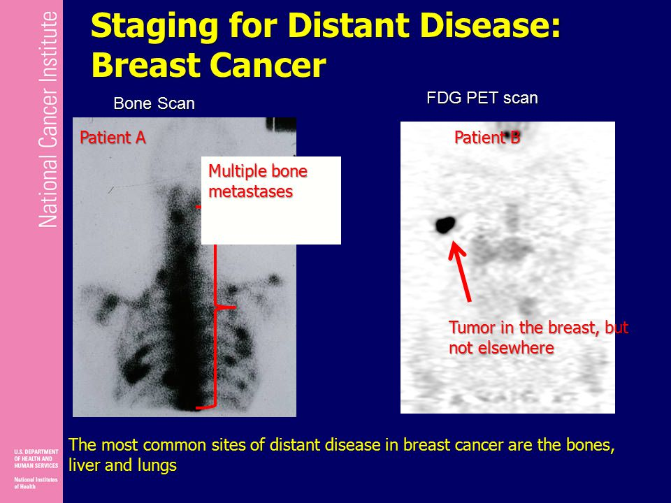 Staging for Distant Disease: Breast Cancer