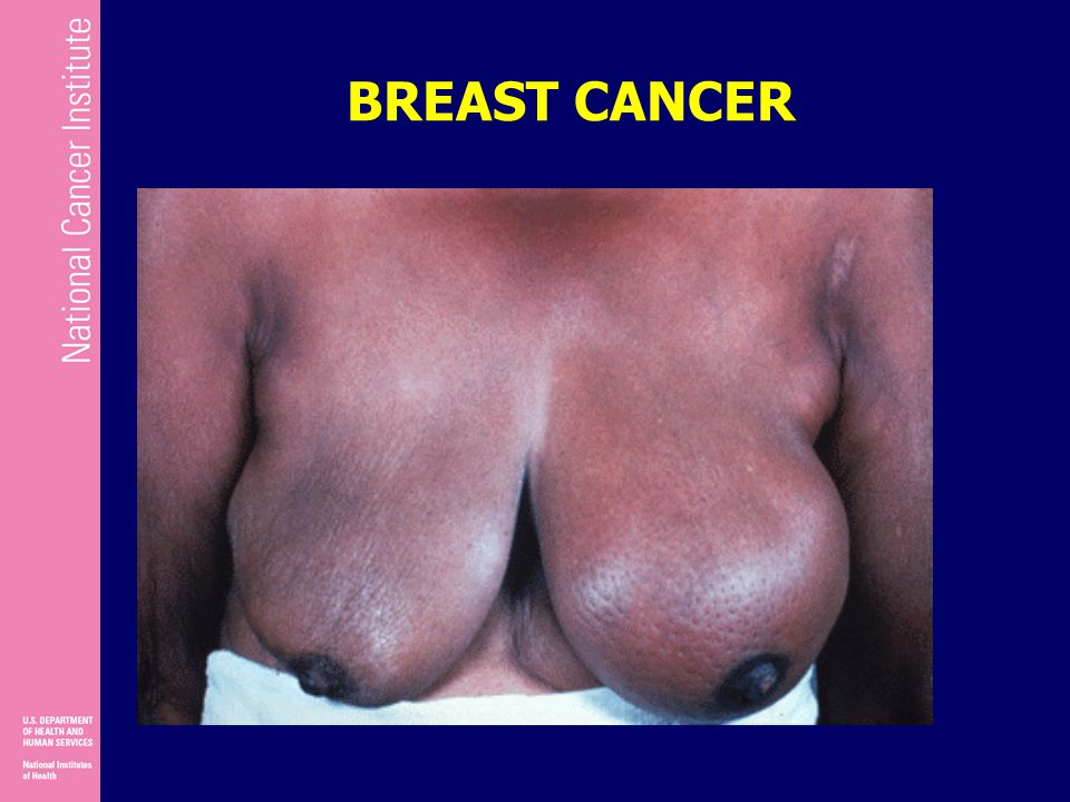 Inflammatory Breast Cancer Research FoundationVisual