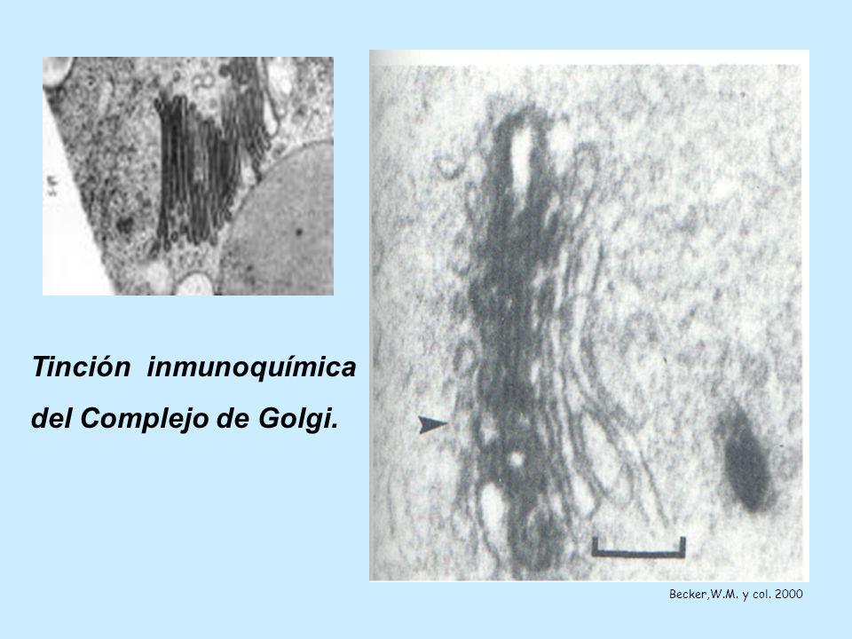 Tinción inmunoquímica del Complejo de Golgi.