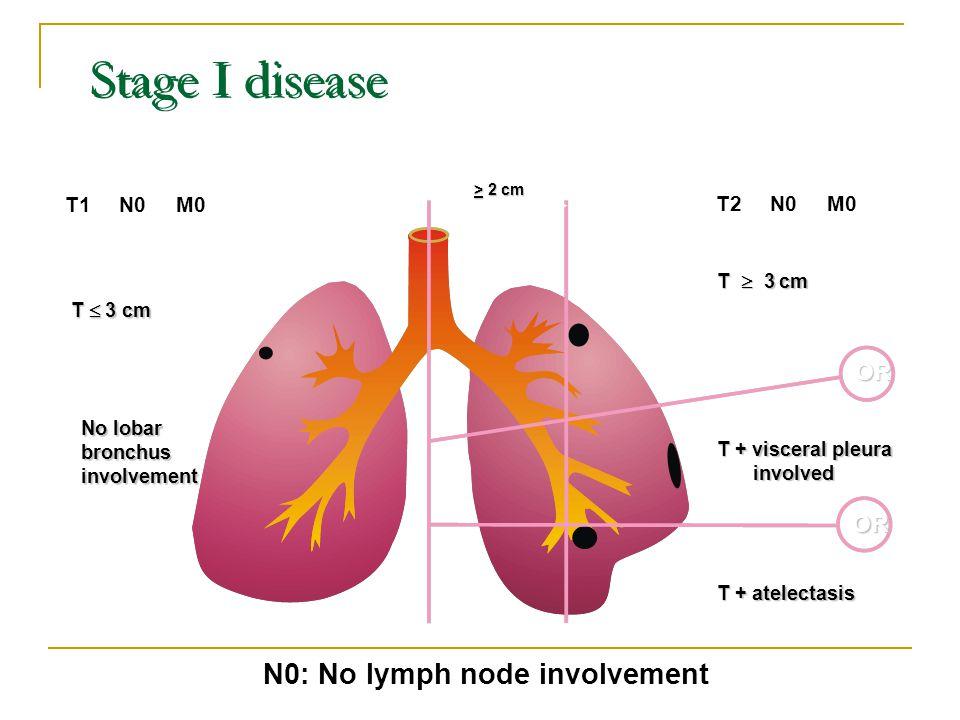 N0: No lymph node involvement