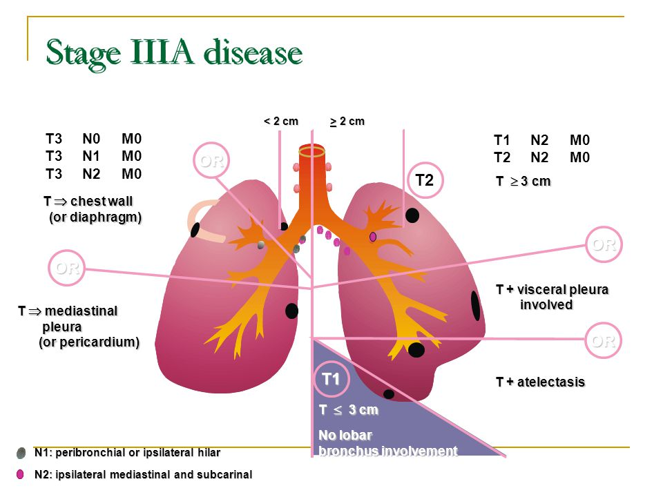 Stage IIIA disease OR T2 OR OR OR T1 T3 N0 M0 T1 N2 M0 T3 N1 M0