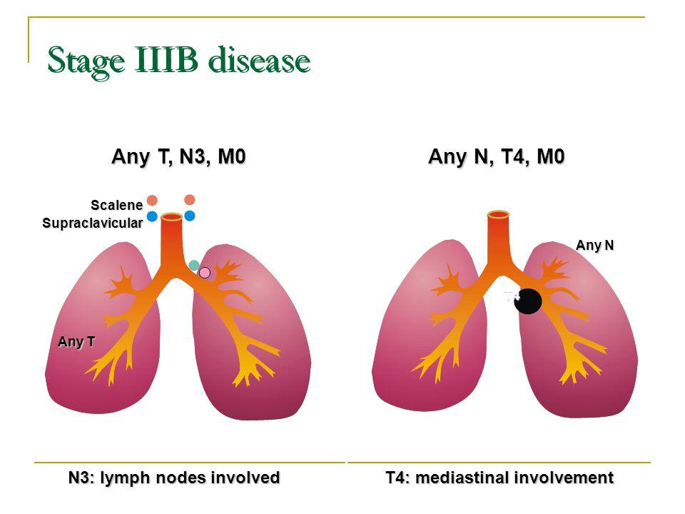 Stage IIIB disease Any T, N3, M0 Any N, T4, M0