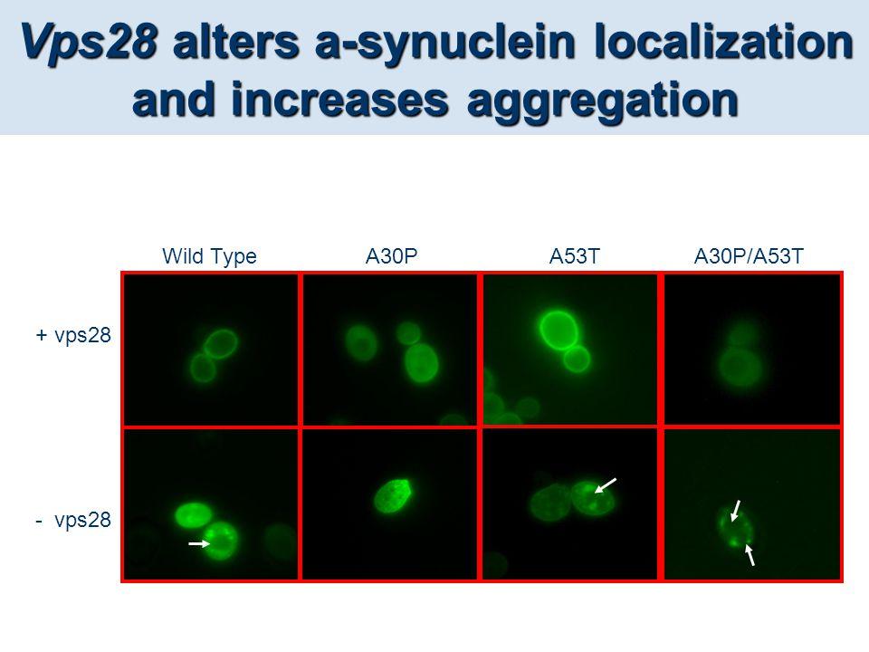 Vps28 alters a-synuclein localization and increases aggregation