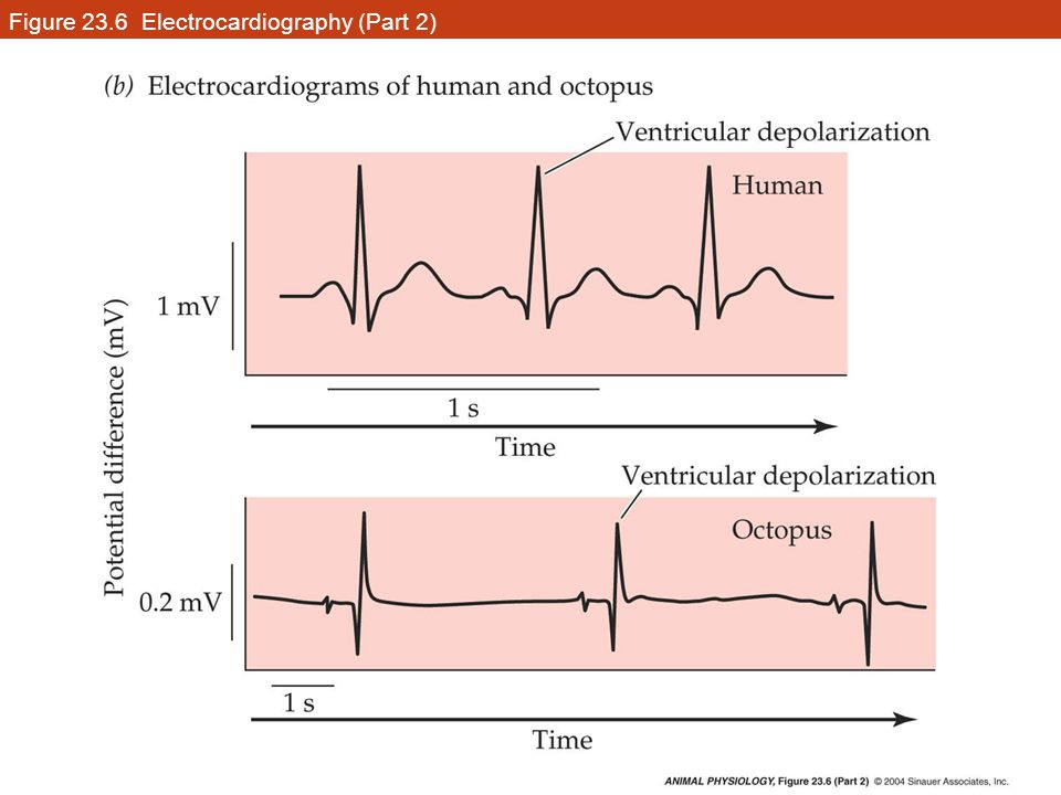 Figure 23.6 Electrocardiography (Part 2)