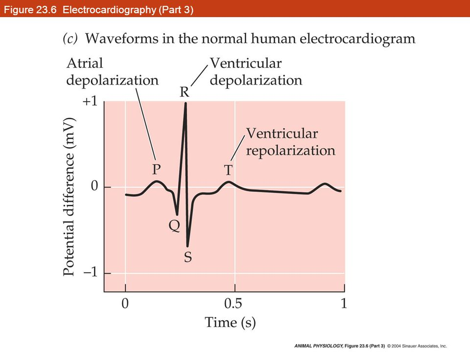 Figure 23.6 Electrocardiography (Part 3)
